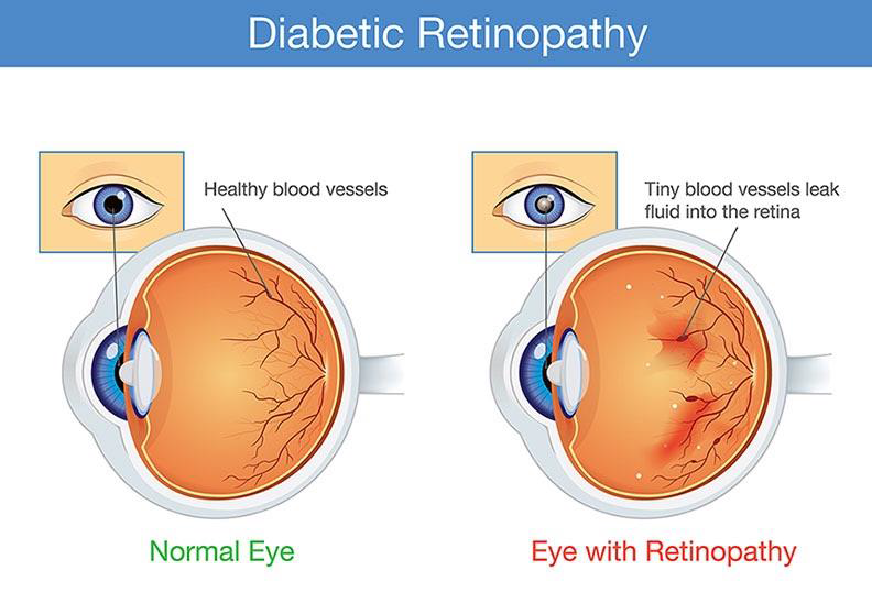 Healthy eye (left) compared to an eye with diabetic retinopathy (right)